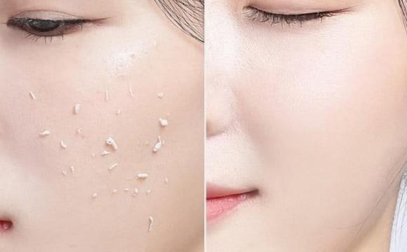 Làm trắng da phụ nữ cũng giống như phẫu thuật thẩm mỹ, đầu mùa thu thời kỳ vàng làm trắng, các phương pháp này giúp bạn tỏa sáng - Hình 2