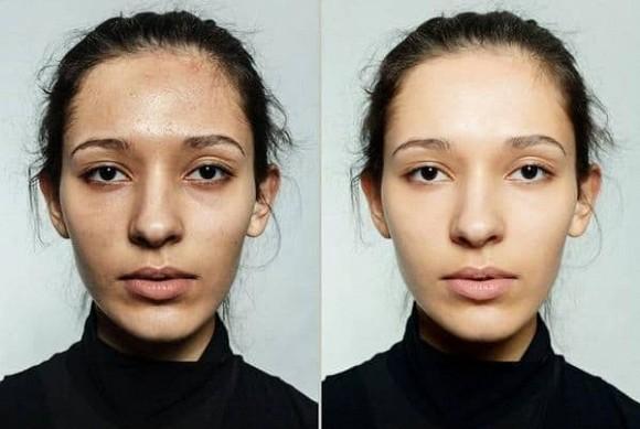 Rửa mặt bằng giấm trắng có những lợi ích gì? 5 vấn đề về da có thể cải thiện nếu rửa đúng cách - Hình 5