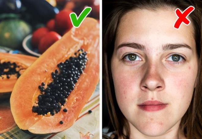 6 thực phẩm giúp ngăn ngừa sẹo do mụn trứng cá - Hình 5