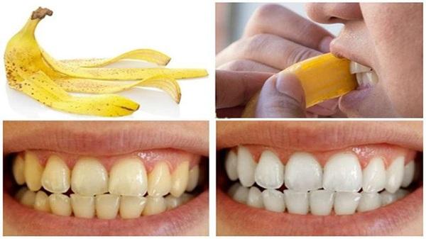 22 Cách làm trắng răng tự nhiên tại nhà hiệu quả nhanh nhất - Hình 4