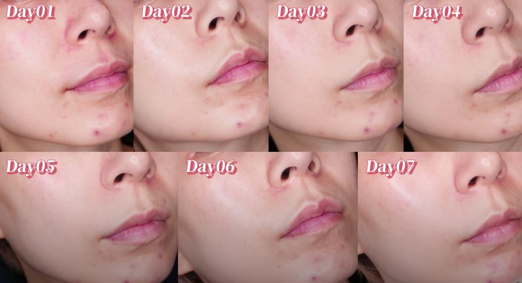 Beauty blogger xứ Đài trực tiếp check khả năng trị nám, trẻ hóa da của serum mới nhất nhà Kiehls: Sau 7 ngày vết thâm to mờ dần, vết nhỏ lặn mất tăm - Hình 6
