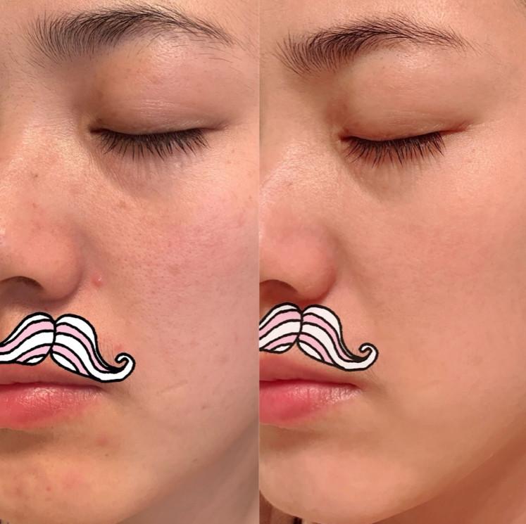 Ở tuổi 30 Ngụy Anh Lạc vẫn sở hữu làn da căng mịn như em bé nhờ áp dụng chế độ cai skincare học từ chuyên gia người Nhật - Hình 2