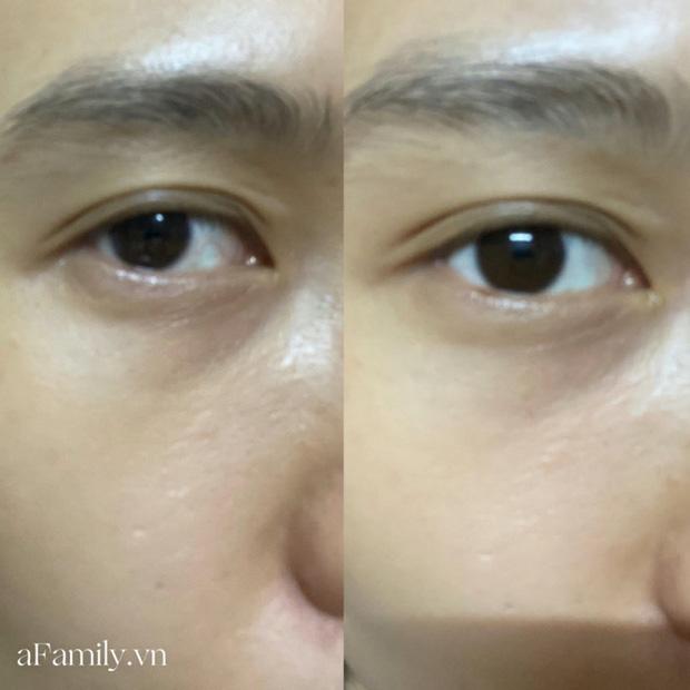 Tôi đã dùng hết lọ serum mắt của The Ordinary, bọng mắt được cải thiện nhưng khả năng dưỡng ẩm thì ở mức trung bình - Hình 3