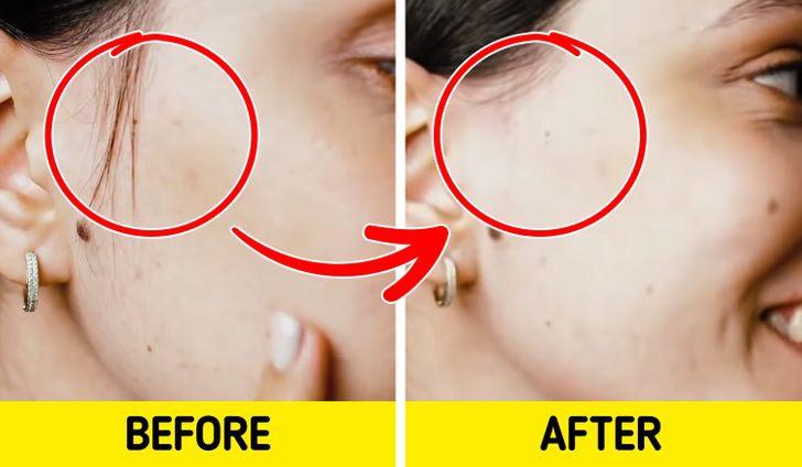 9 cách giúp loại bỏ lông trên mặt - Hình 3