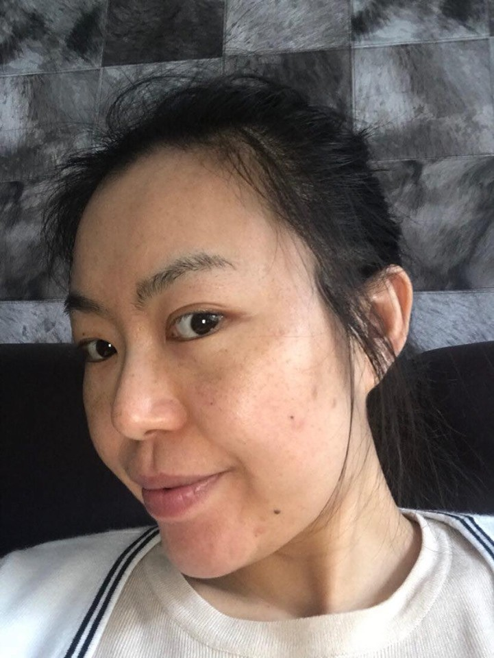 3 thành phần được ví như phép màu hồi sinh làn da bị nám, tàn nhang: Chị em ngoài 30 tuổi da đang lão hóa cần tìm hiểu ngay còn kịp - Hình 2