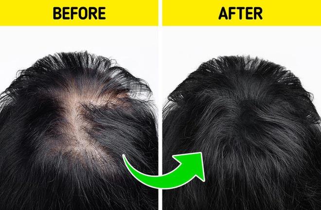 7 cách giúp mọc tóc nhanh - Hình 3