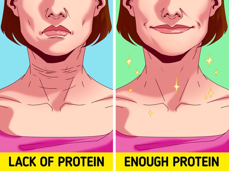 6 nguyên nhân làm tăng nếp nhăn trên da - Hình 6