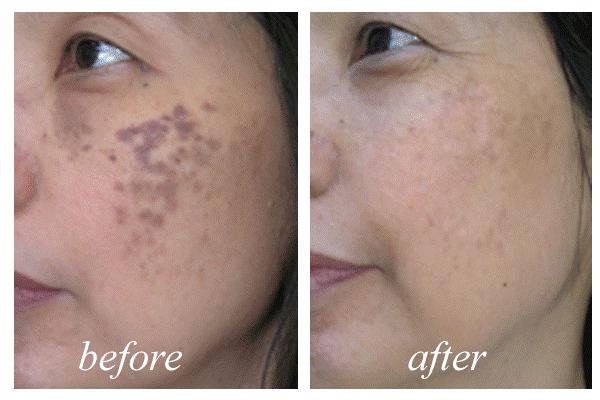 Yếu tố quyết định để diện phong cách trang điểm tự nhiên no makeup hoàn hảo - Hình 3