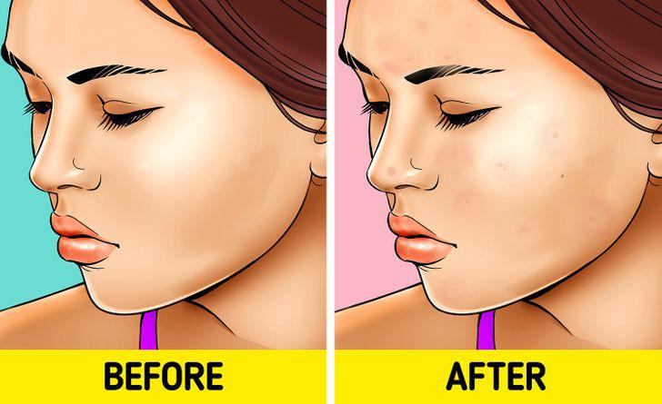 Quên tẩy trang trước khi đi ngủ: có 7 vấn đề sẽ xảy đến với sức khỏe lẫn nhan sắc của bạn - Hình 2