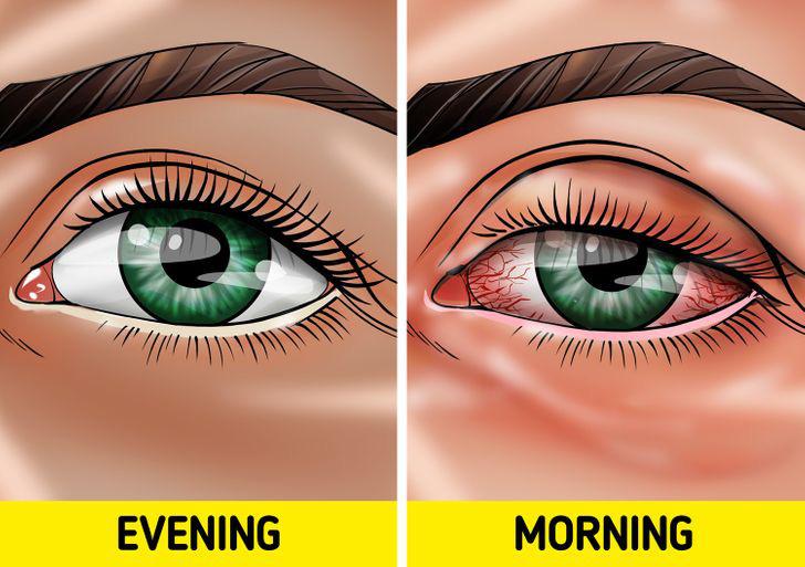 Quên tẩy trang trước khi đi ngủ: có 7 vấn đề sẽ xảy đến với sức khỏe lẫn nhan sắc của bạn - Hình 4