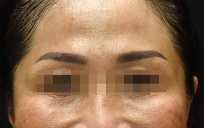 Độc tố botulinum có thể giúp trẻ hóa làn da, làm thon gọn khuôn mặt - Hình 1