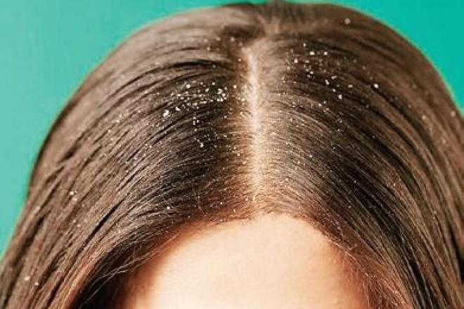4 thói quen khiến da đầu có gàu - Hình 4