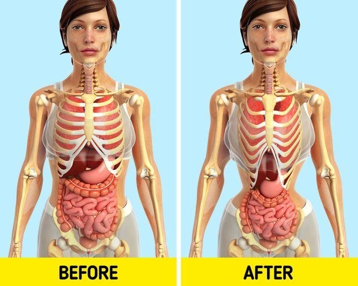 Đai nịt bụng không giúp giảm eo như bạn tưởng - Hình 7