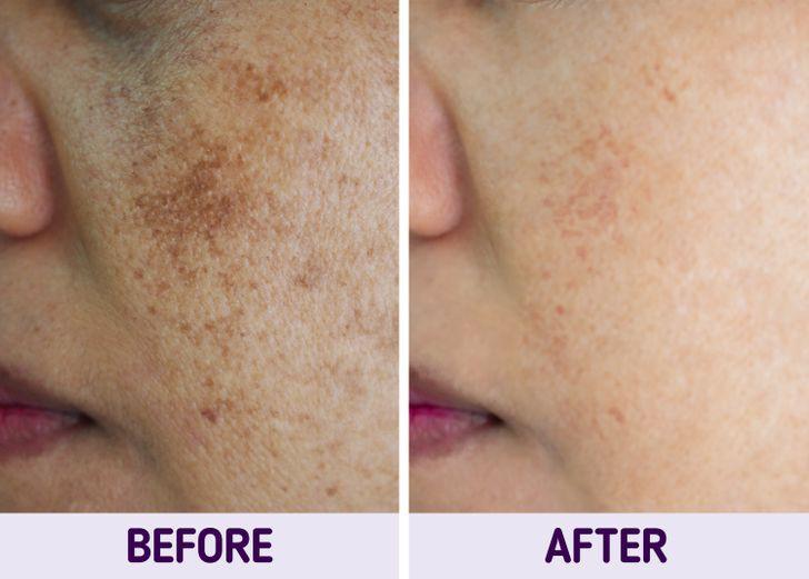 10 mẹo vặt giúp chữa nám da tại nhà hiệu quả - Hình 10