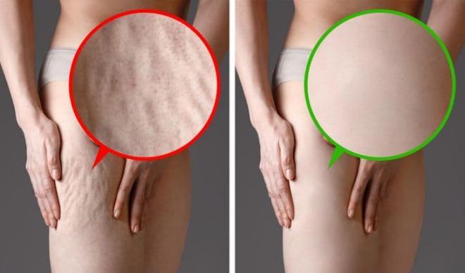 Điều gì có thể xảy ra với làn da của bạn nếu từ bỏ hoàn toàn việc uống cà phê? - Hình 1