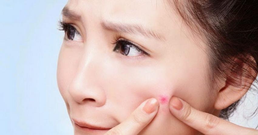 8 bí quyết dành cho người đang đau đầu vì mụn đầu trắng - Hình 1