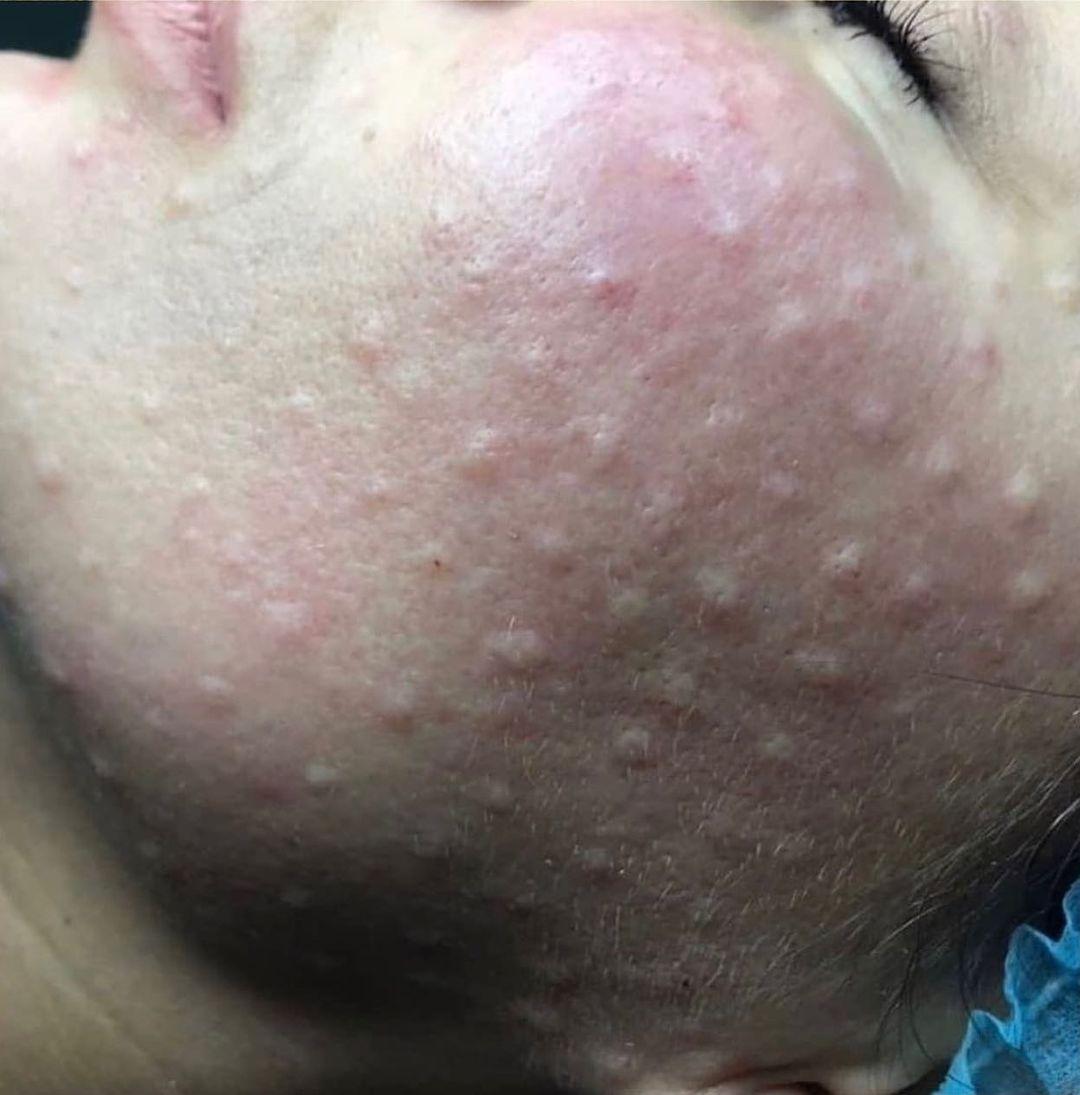 Phương pháp tiêm nghìn lỗ trên mặt: Chục triệu đổ vào 1 mũi nhưng chuyên gia chăm sóc da lại chỉ ra 1 điều nguy hại - Hình 3