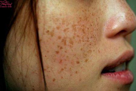 Trả giá bằng cả khuôn mặt khi trị nám da không đúng cách - Hình 1