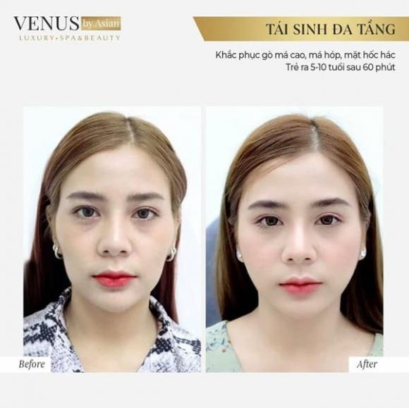 Điều giúp Venus by Asian là địa chỉ làm đẹp 5 sao - Hình 5