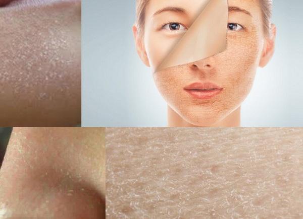 Cảnh giác với biến chứng do da khô - Hình 1