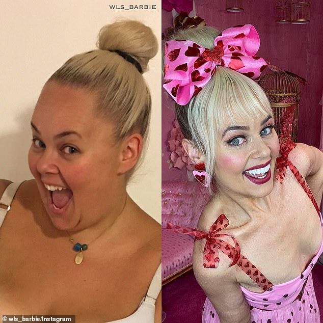 Nàng béo 154kg phẫu thuật cắt bỏ 80% dạ dày, lột xác kinh ngạc để giống búp bê Barbie - Hình 5