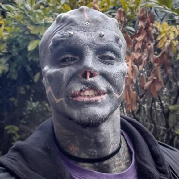 Phẫu thuật thành người ngoài hành tinh đen, chàng trai bị di chứng không nói được - Hình 3