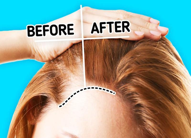 7 cách nhận biết xem liệu bạn có rụng tóc quá nhiều - Hình 5