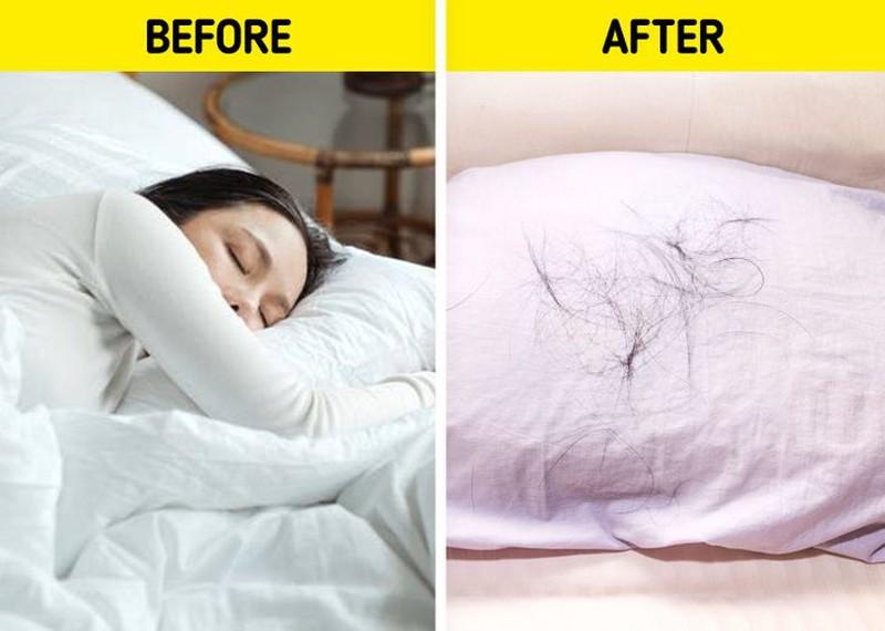 7 cách nhận biết xem liệu bạn có rụng tóc quá nhiều - Hình 7