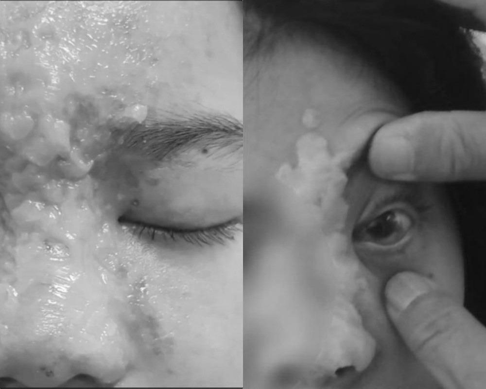 Làm đẹp đón Tết, người suýt mù mắt vì tiêm filler, người môi mưng mủ vì xăm - Hình 4
