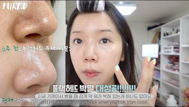 Nặn mụn thô bạo là sai cực kỳ, beauty blogger Hàn mách cách lấy mụn đầu đen với Vaseline siêu nhẹ nhàng và không hại da - Hình 1