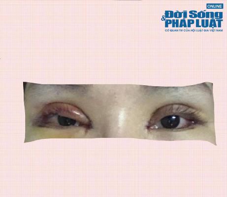 Suýt mù vĩnh viễn vì cắt mí tại cơ sở kém chất lượng - Hình 1