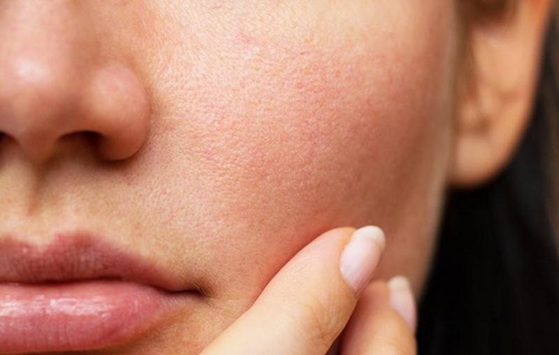 Bác sĩ da liễu khẳng định: Không phải dòng kem chống nắng nào cũng dùng được với làn da lão hóa hay hư tổn sau xâm lấn - Hình 1