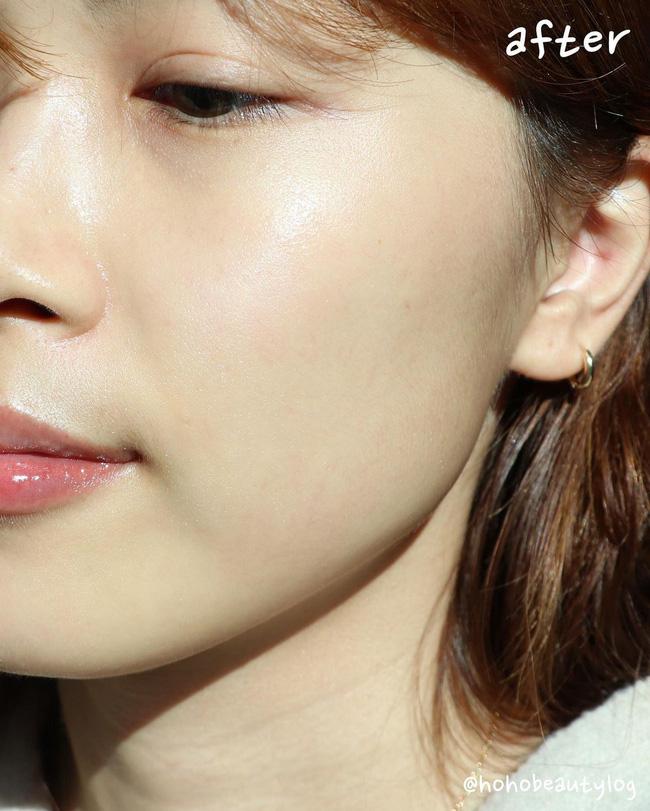 Theo bác sĩ: Đây là 5 cách dễ và nhanh nhất để khiến lỗ chân lông gần như mất dạng, da đẹp mỹ mãn đón Tết - Hình 2