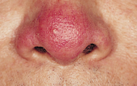 Phổi bị tổn thương trên mặt sẽ xuất hiện 3 vấn đề, nếu không có thì xin chúc mừng - Hình 2