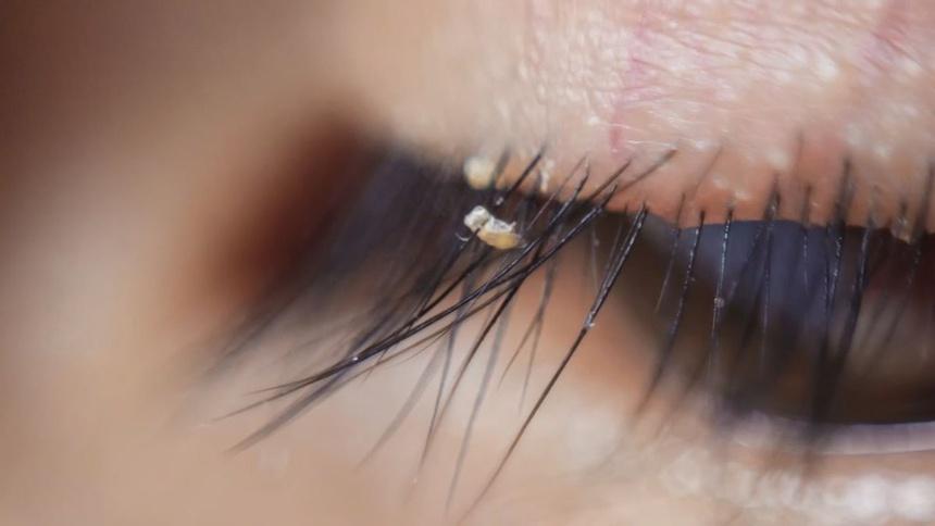 Căn bệnh khiến bọ ve làm tổ trên mắt sau khi nối mi - Hình 2