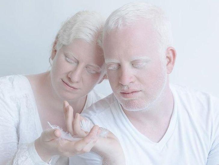 Vẻ đẹp khác lạ của những người mắc bệnh bạch tạng - Hình 14